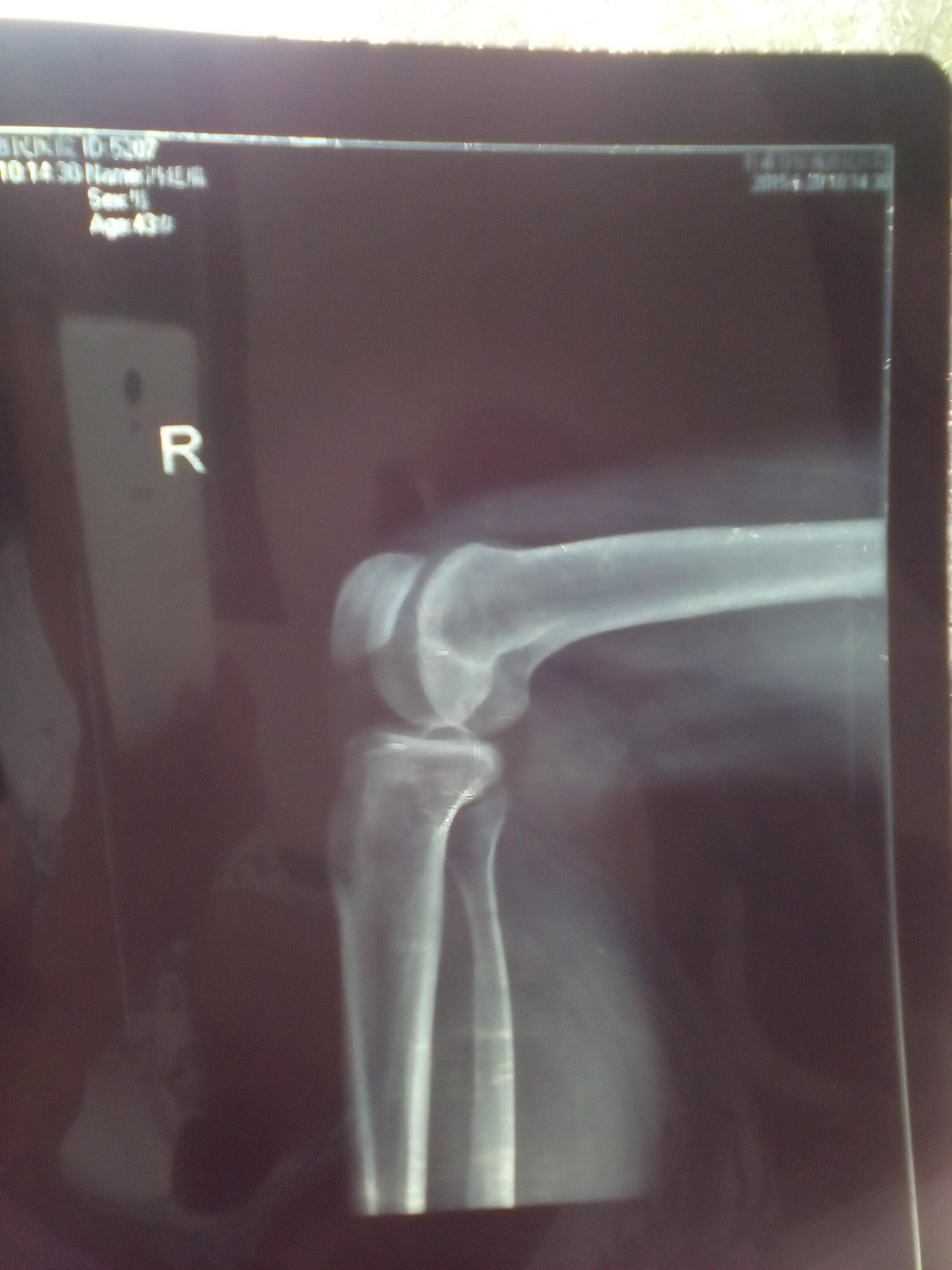 右腿肋湾里腘窝囊肿在县医院能做切除手术吗?