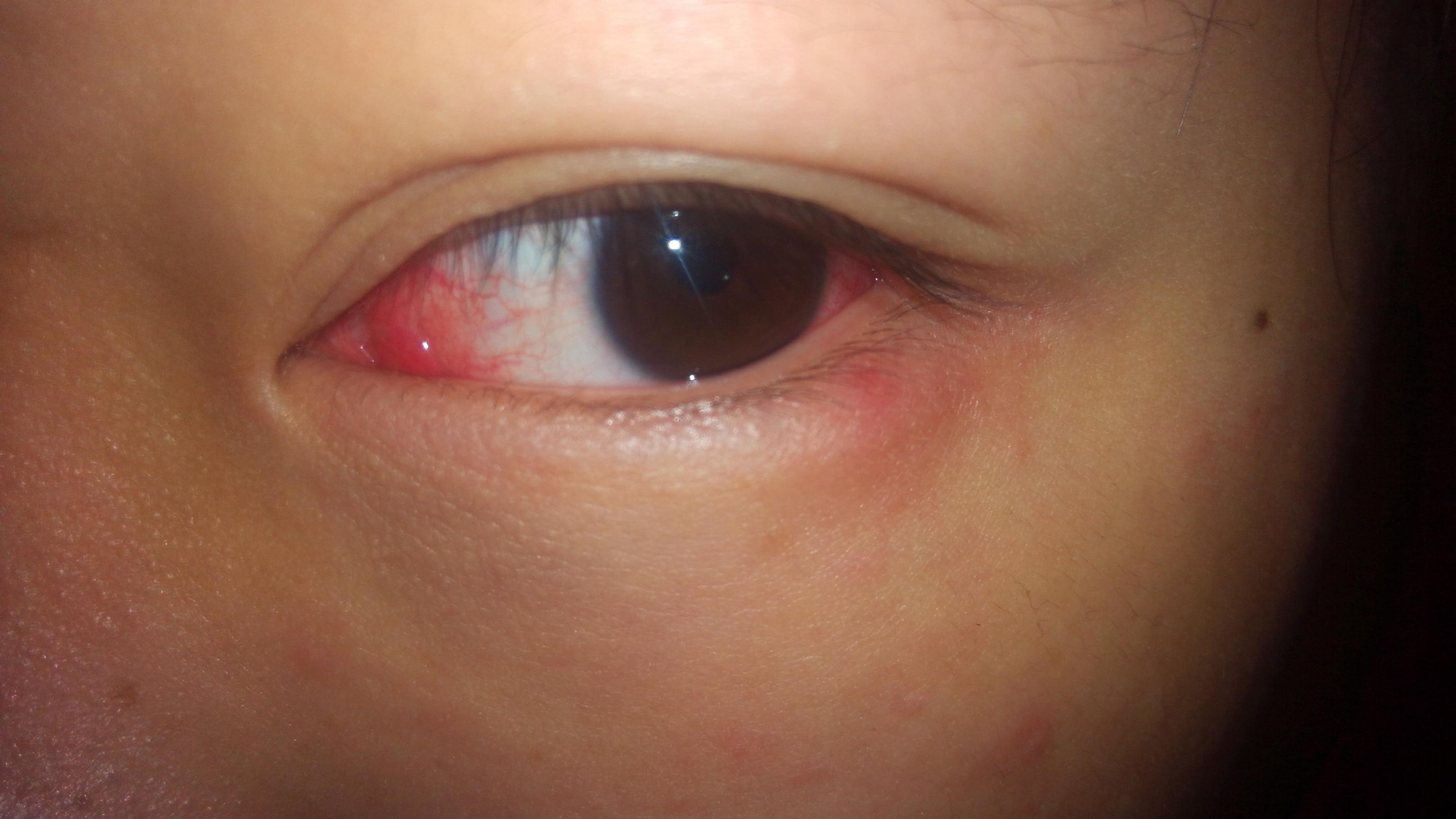 小孩子眼睛有红血丝_眼睛有血丝还能不能继续带美瞳-_补肾参考网