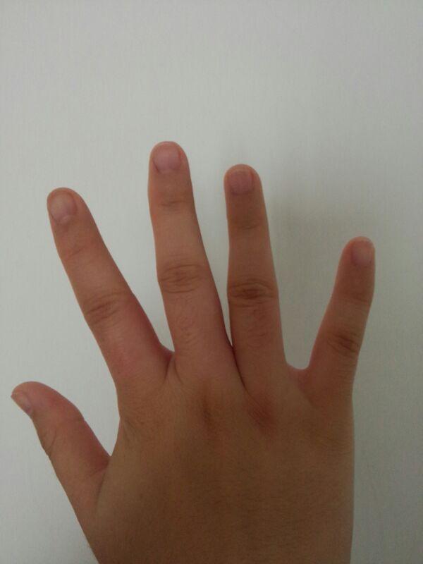 昨天傍晚我的右手手指根部就出现刺疼