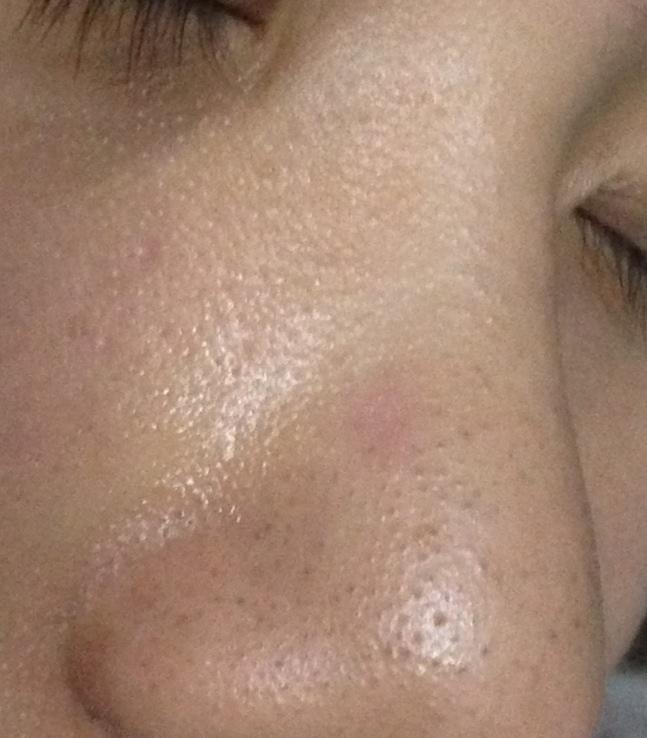 鼻子右侧长了一个类似脓包的东西红色的一直流水还痒八个月了上个