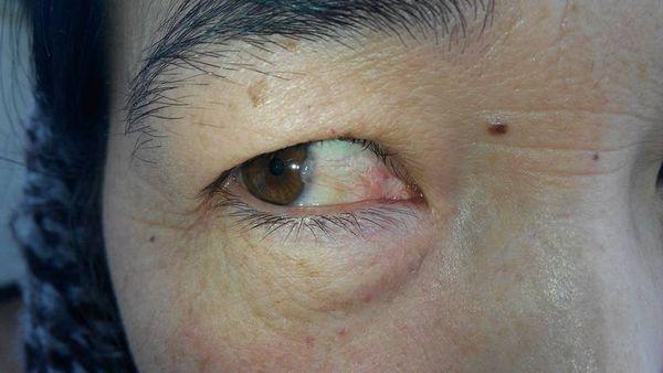 黑眼球上有个白点图片_我妈妈74岁,黑眼球旁边有白色不透明斑块向内渐长,看起来就在