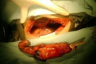 食道癌的并发症有哪些