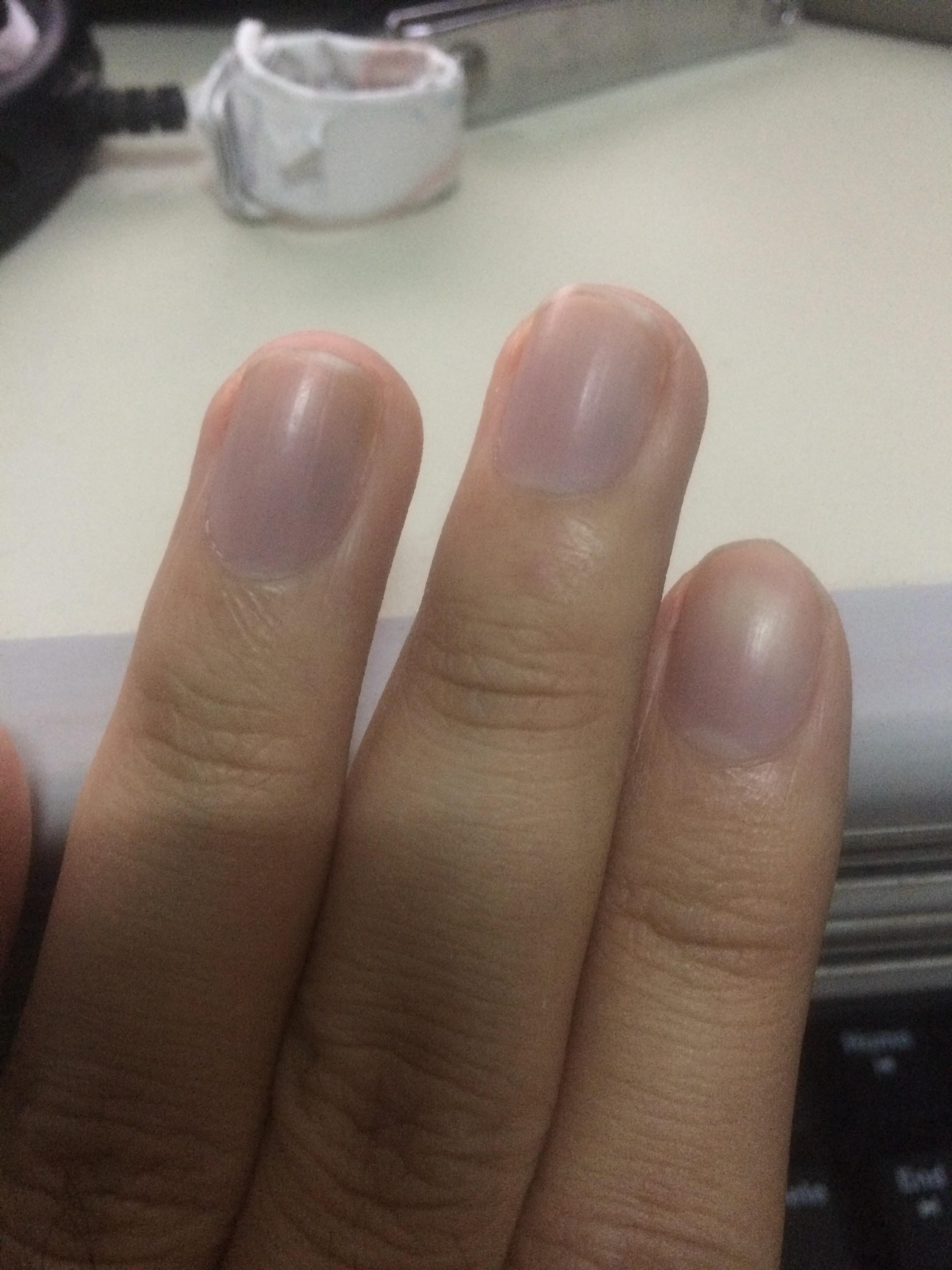 我想知道我不知道得了什么病。指甲颜色有问题