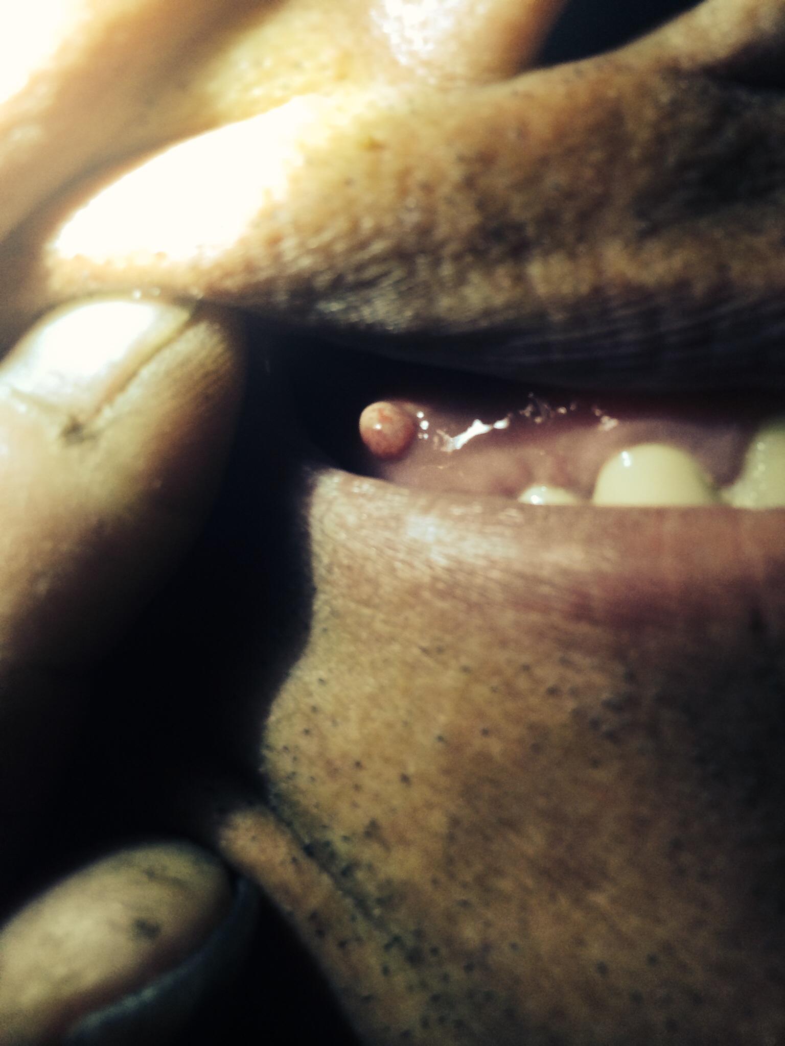 您好我父亲上牙膛张个胳子,不疼以前张过没了又张了怎么回事呢?