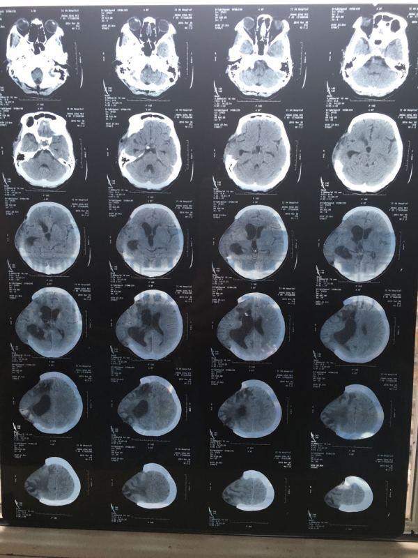您好大夫,我母亲今年49岁,四个月前在老家吉林因高血压脑出血