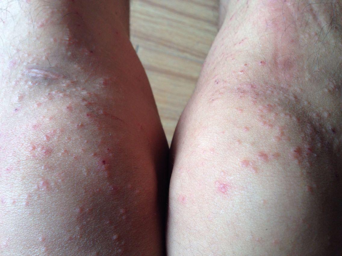 以前有过抹些皮炎平好了今年感觉严重抹皮炎平没用吃了些抗过敏的