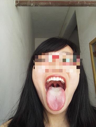 舌头根部有小疙瘩