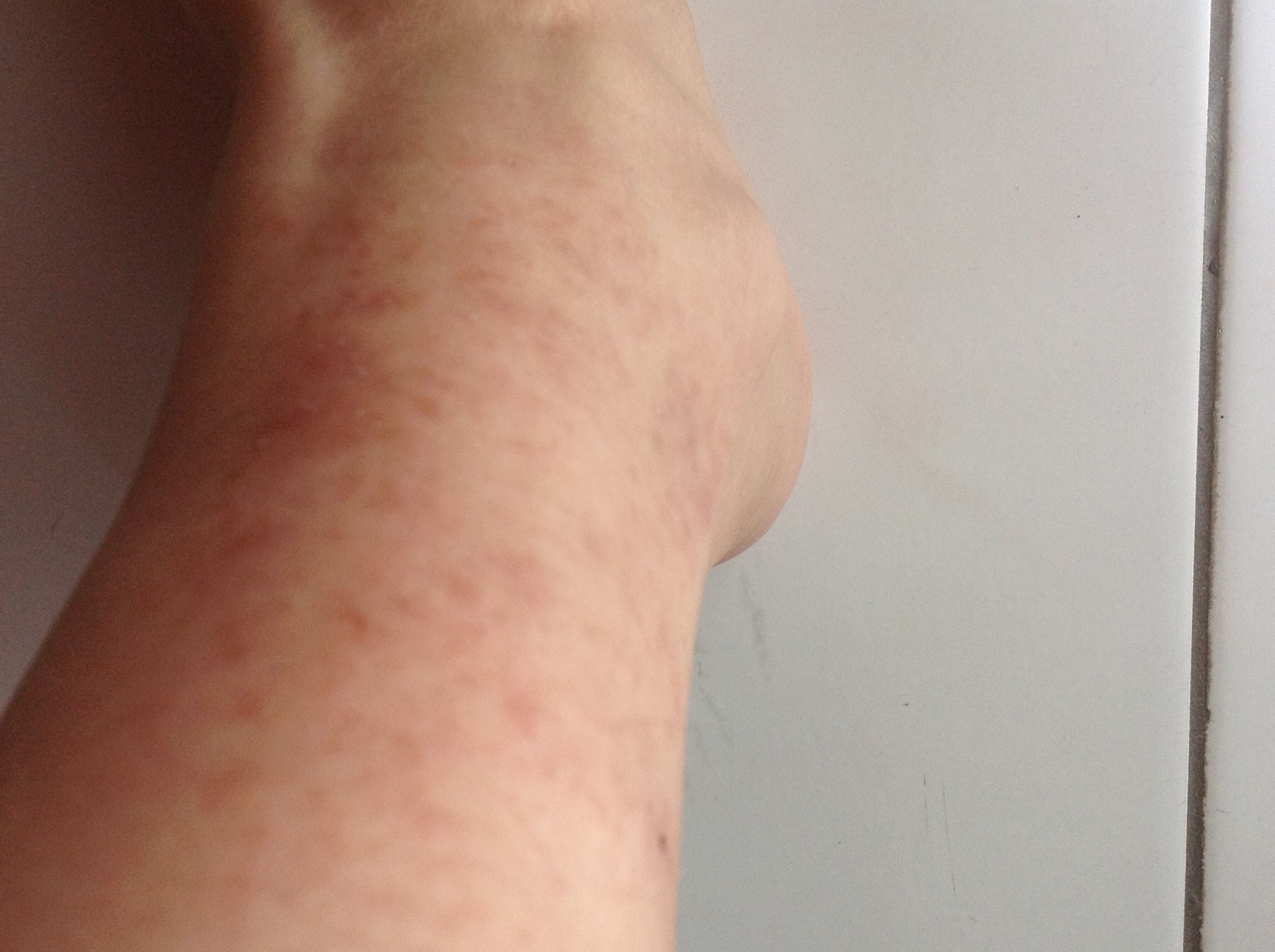 染发后,脖子后面皮肤瘙痒,持续半年多期间有涂抹皮炎平,情况反