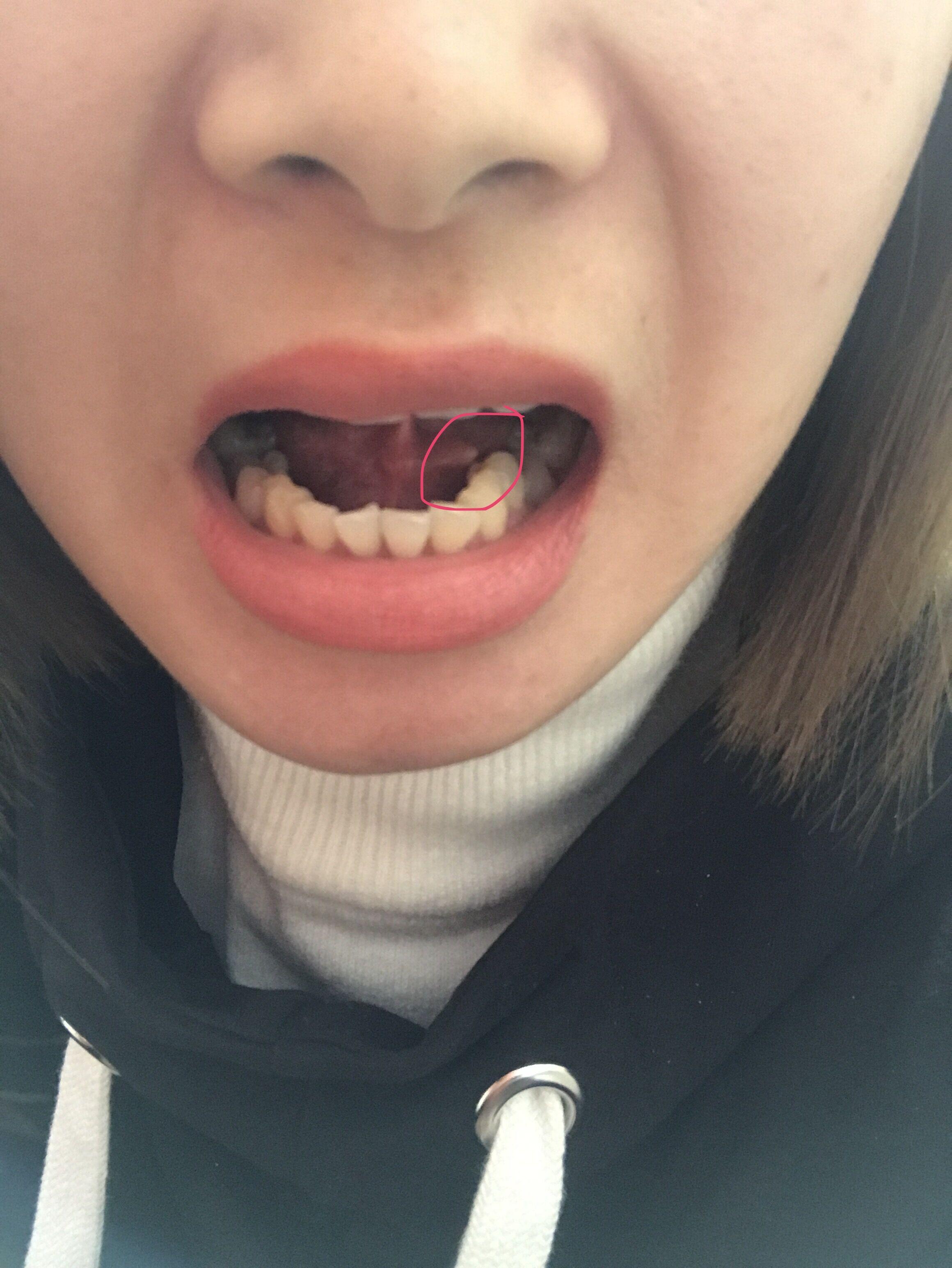 我舌头下面长了一粒像是肉瘤,没有疼痛感,感冒第二天长出来的。