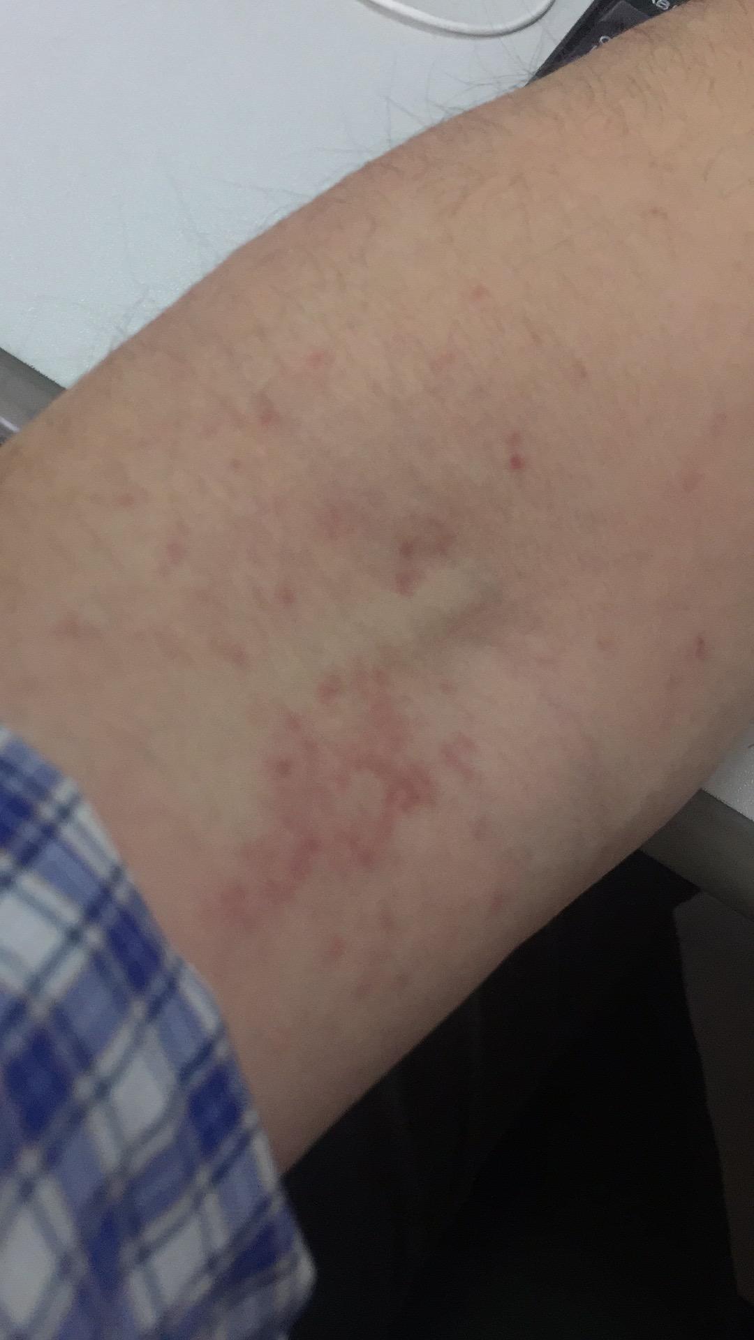 前幾天發燒,驗血打過點滴,今天手背上開始出現紅點點,驗血扎針