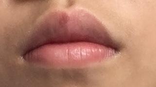 您好,我是一个13岁的女生,本来我嘴唇很薄,但是有一次意外导