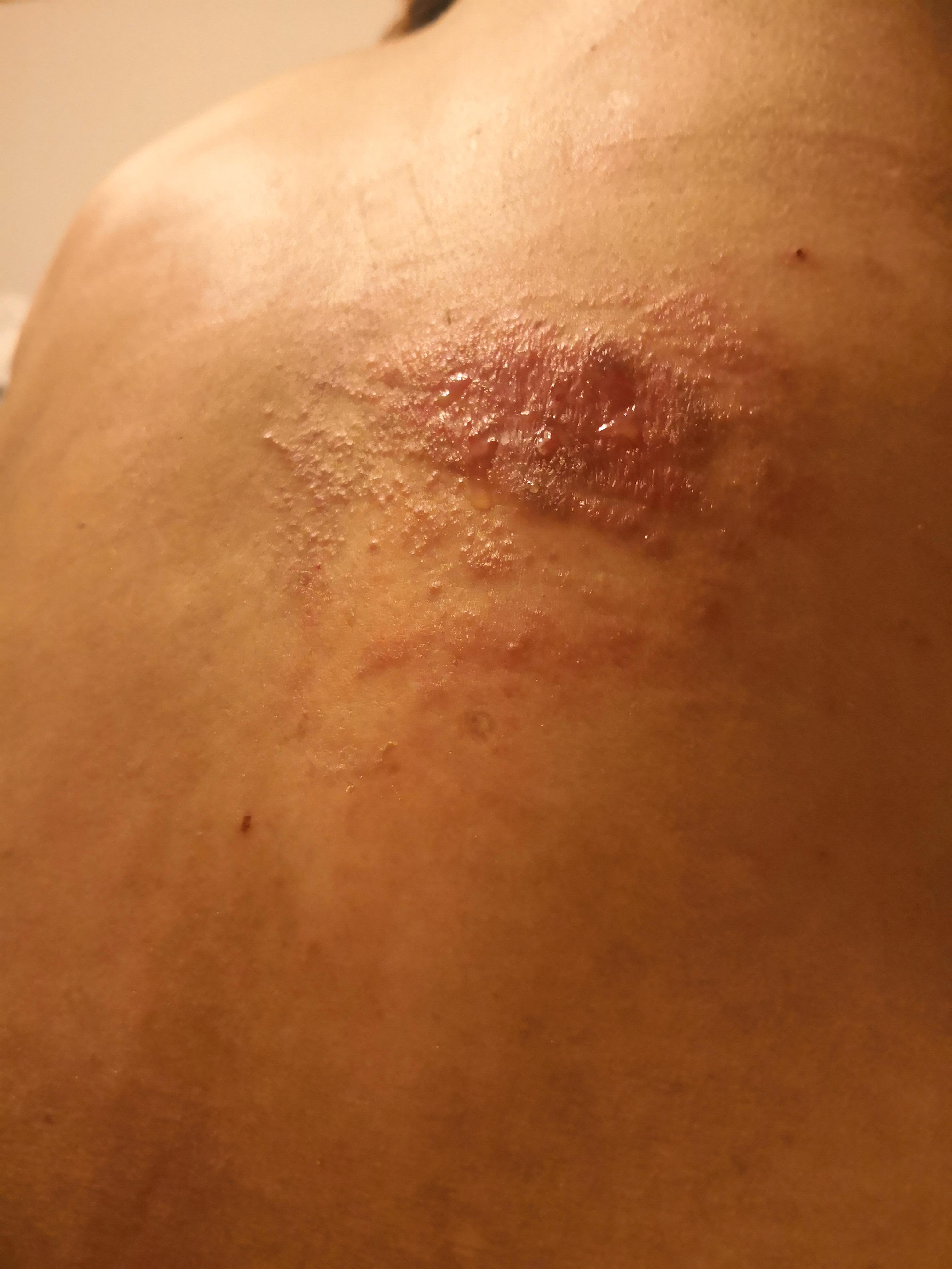 7月15日被卷发棒烫伤背部,面积约半个手掌大,创面发白图片