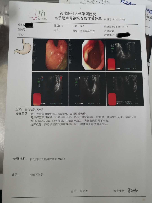 我母亲在息肉钳除时发现胃部贲门有凸起物,后做了电子超声胃镜检
